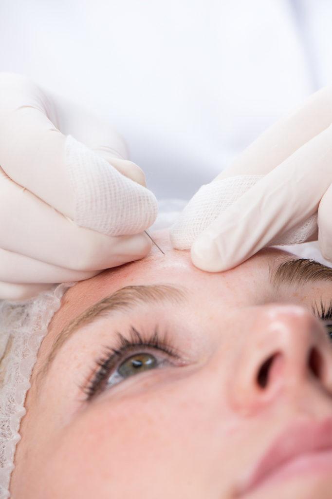 acnebehandeling-huidzorgzeist