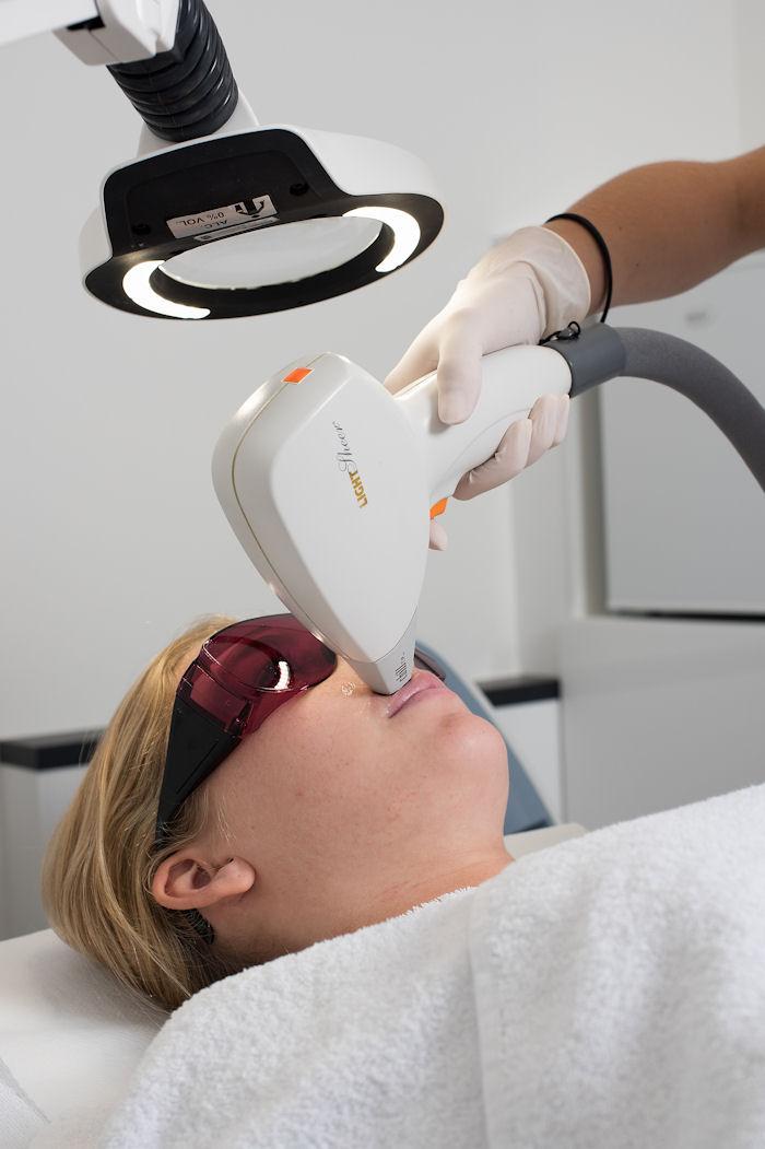 laserontharing-gezicht-huidzorgzeist