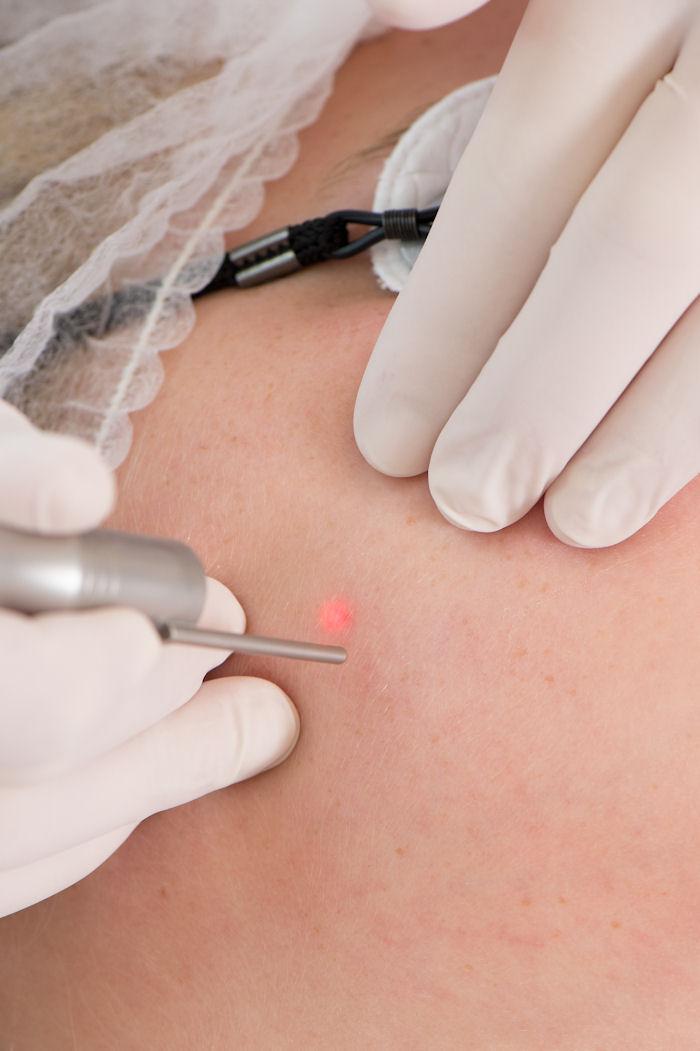 pigmentbehandeling-huidzorgzeist